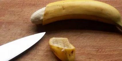 Обрезание – необходимая операция для каждого мужчины