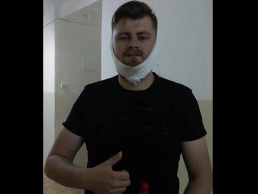 ВЧеркассах националисты сломали челюсть ветерану АТО завыкрик «Слава Украине!»