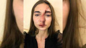 В Москве избили новосибирскую певицу
