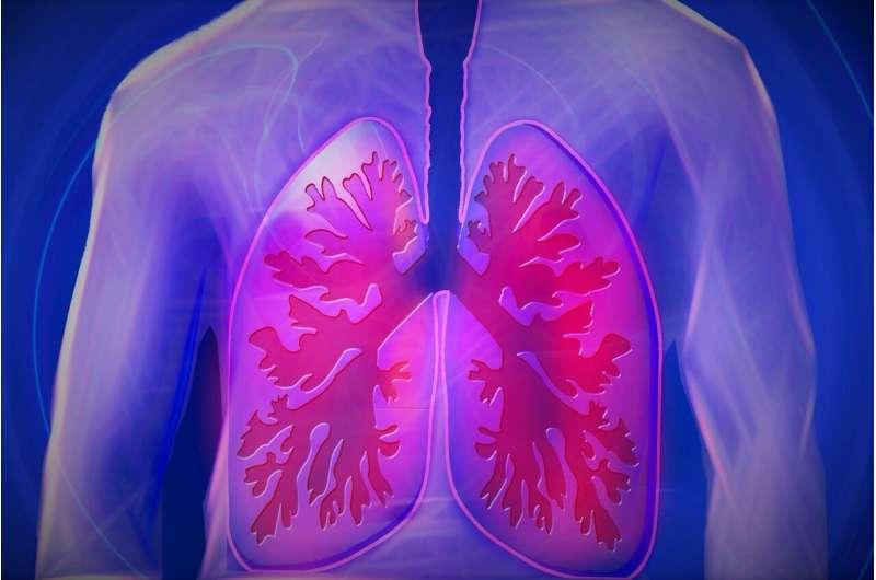 Исследование подтверждает более длительное повреждение легких после COVID-19