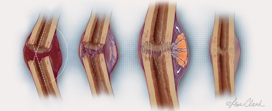 Новый пористый биоматериал может помочь в восстановлении костей