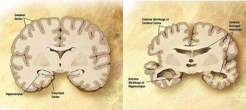 Новое лечение останавливает прогрессирование болезни Альцгеймера в мозге обезьян