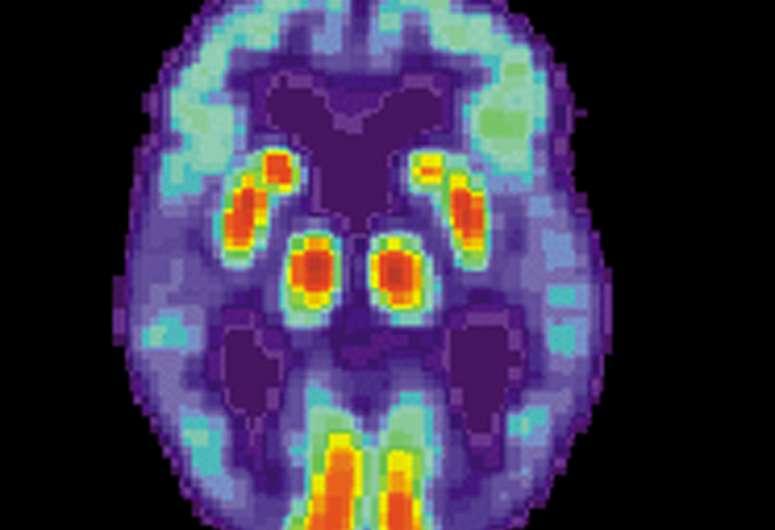 Роль мозга в очистке от токсичных белков и предотвращении болезни Альцгеймера