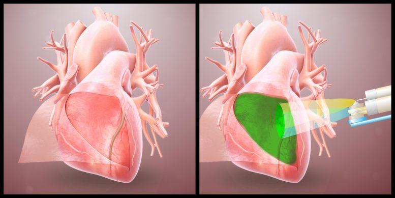 Учёные разработали гидрогель, который защищает сердце от прилипания к окружающим тканям
