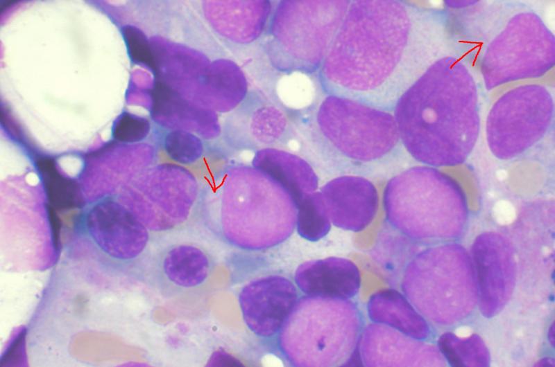 Два исследования изучают связь между воспалением и лейкемией