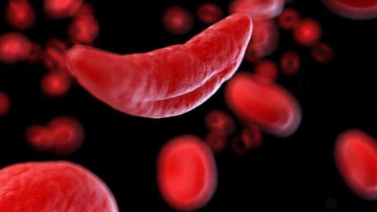 Использование базового редактирования для лечения серповидно-клеточной анемии у мышей