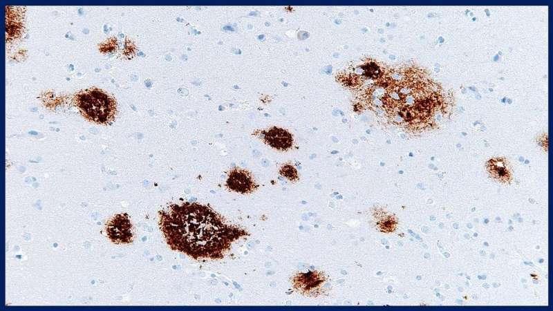 Неспособность избавиться от бета-амилоидного белка в головном мозге может привести к болезни Альцгеймера