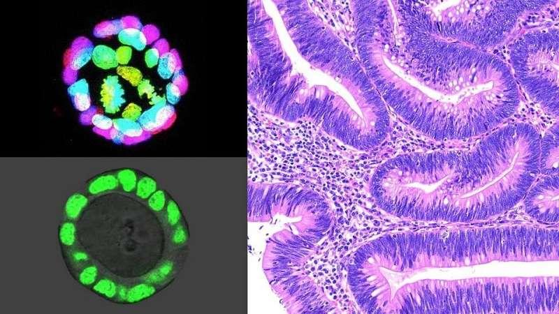 Молекулярные изменения в тканевом микроокружении могут способствовать развитию рака