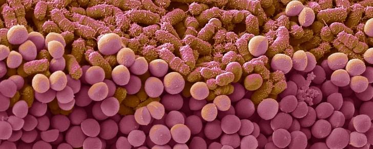 Молекулы, продуцируемые кишечными бактериями, могут помочь человеческому организму бороться с раком