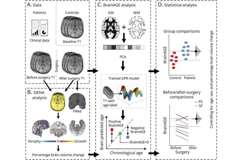 Хирургия эпилепсии может улучшить общее состояние мозга