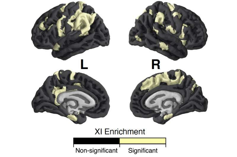 Учёные изучили влияние Х-хромосомы на анатомию мозга